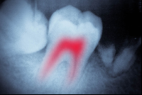 root canal nerve in red