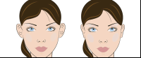 otoplasty faces procedure in costa rica