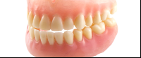 full mouth restauration denture costa rica