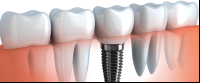 dental implants in costa rica